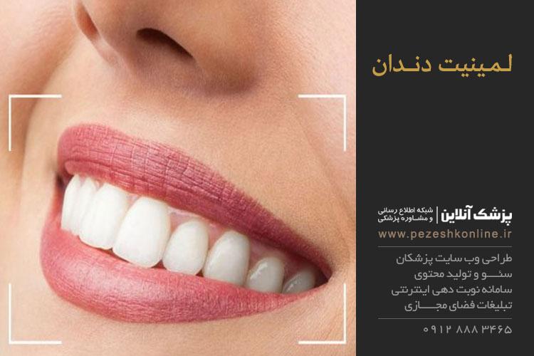 لمینت برای دندان