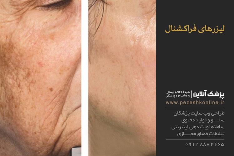 لیزرهای فراکشنال پوست