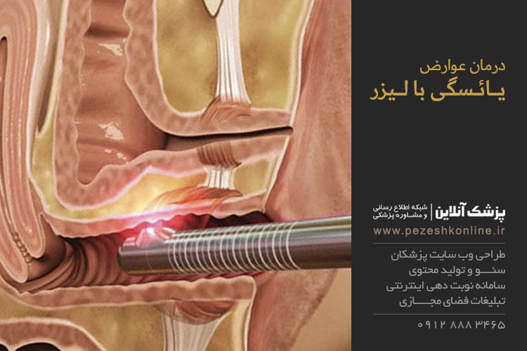 درمان عوارض يائسگی با ليزر