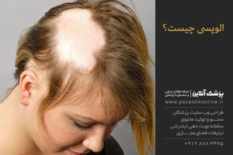آلوپسی یا ریزش موی ناگهانی