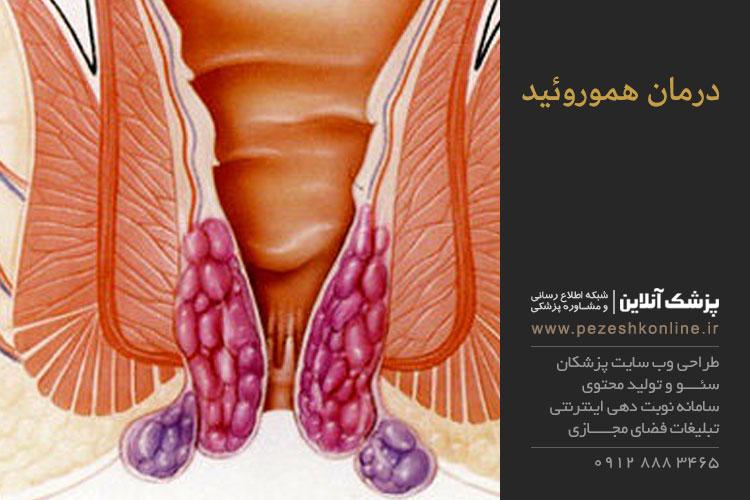 هموروئید چیست و چگونه درمان میشود